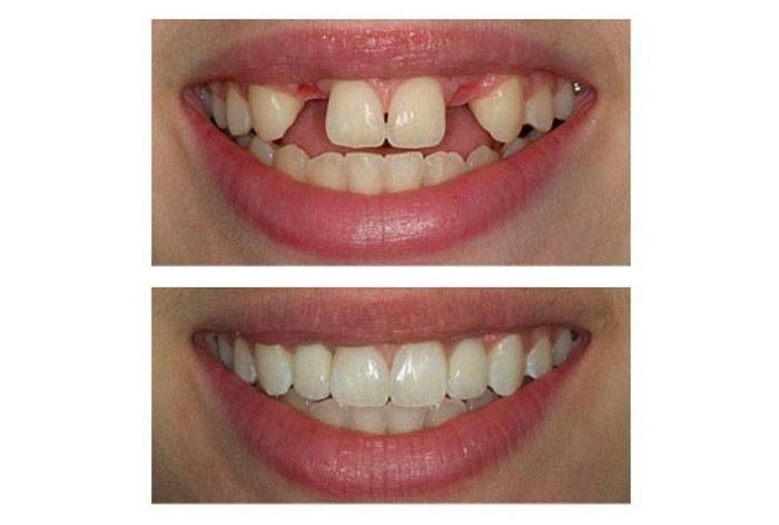 زیبایی ایمپلنت دندان لبخندی زیبا تر