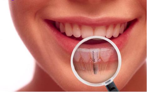 مدت کاشت دندان